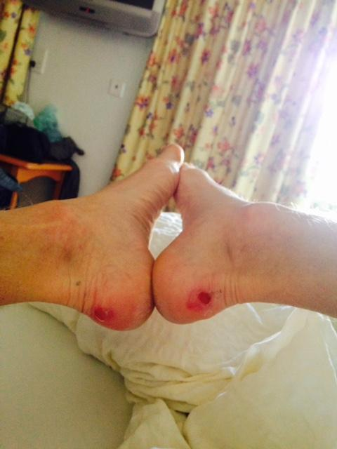 skavsårsplåster på öppet sår